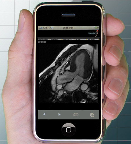 Medical Images on iPhone